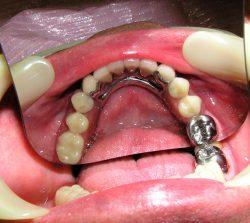 ортопед Екатеринбург зубы