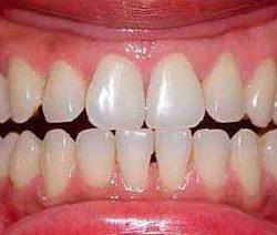 отбеливание зубов Екатеринбург