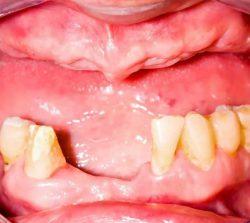 ппротезирование зубов